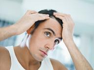 les causes de votre chute de cheveux