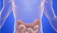 Les maladies inflammatoires chroniques de l'intestin (MICI)